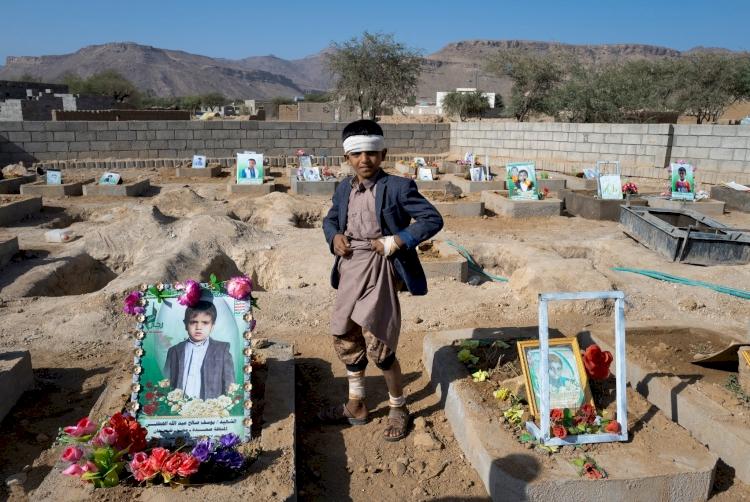 Yemen'de savaşın acı bilançosu: 5 bin 700 çocuk hayatını kaybetti